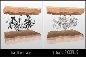 Laser Picosegundos vs Q Switched Nd: Yag Laser