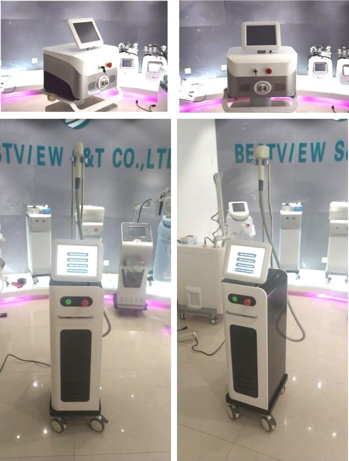 Type of laser hair removal machine